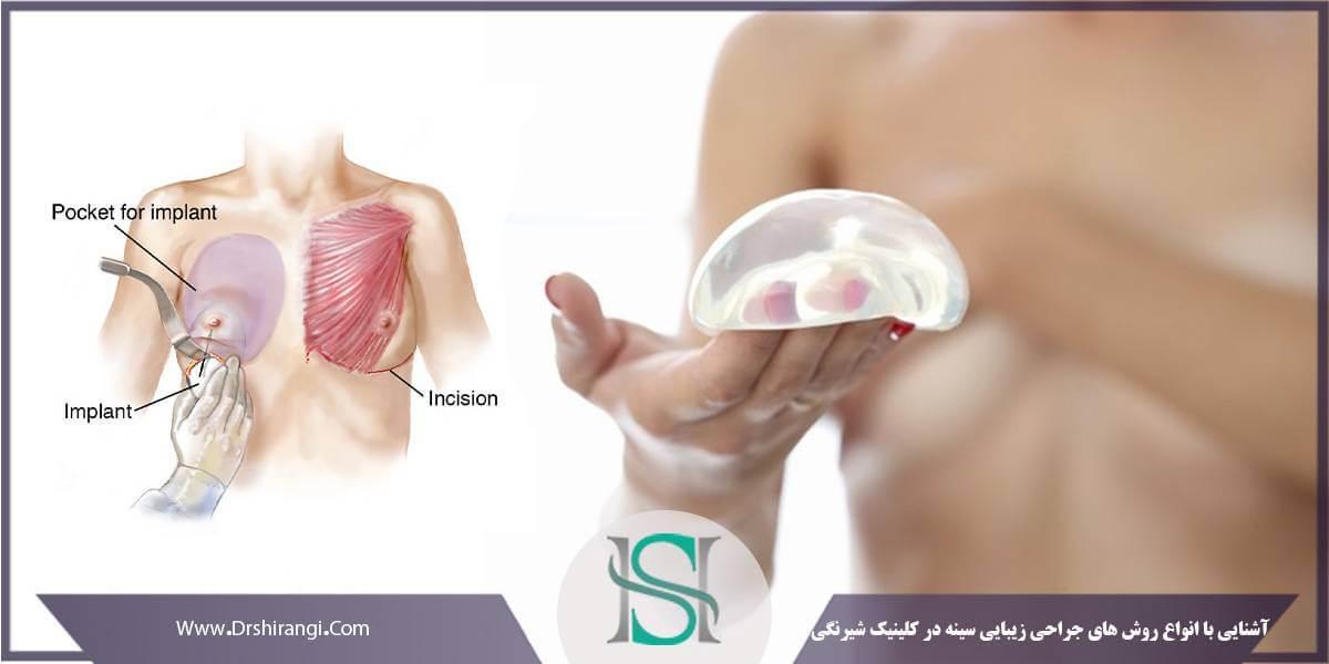 عمل زیبایی سینه در کلینیک شیرنگی