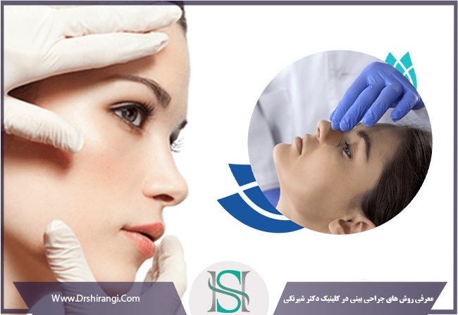 انواع روش جراحی بینی
