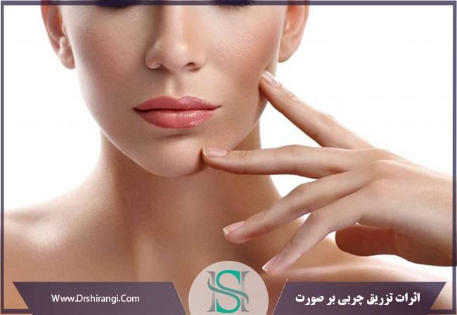 تزریق چربی و جوانسازی صورت