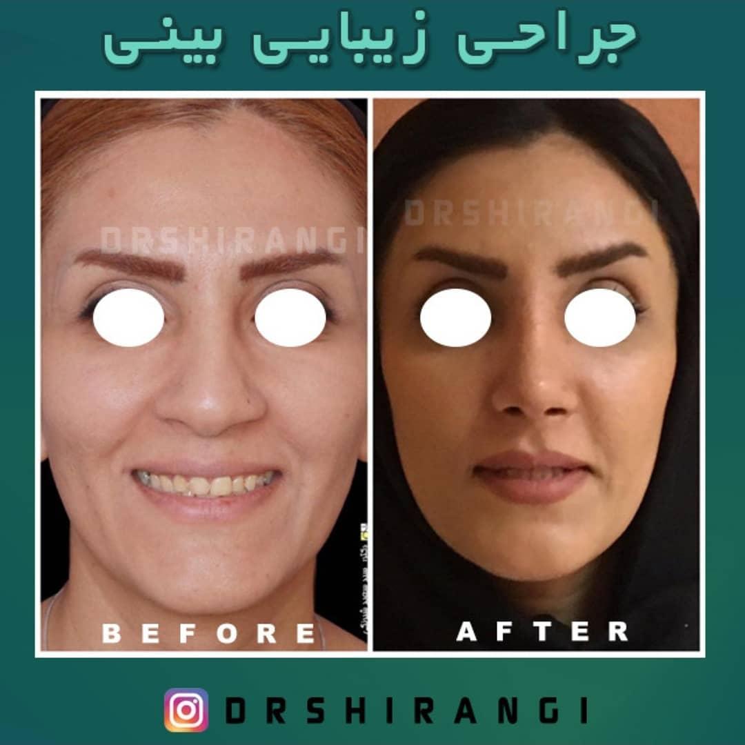 بهترین جراح بینی در کرج