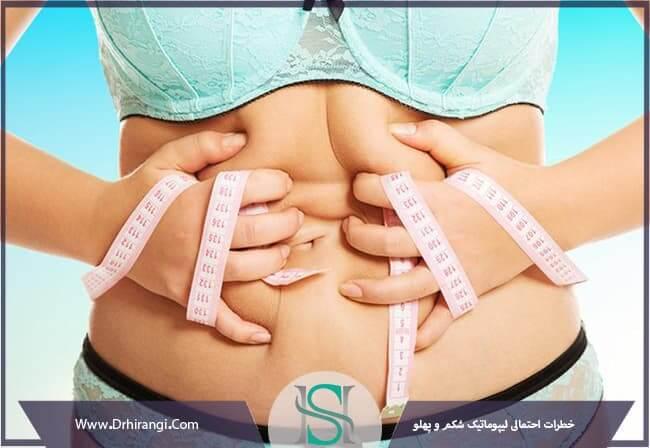 خطرات احتمالی لیپوماتیک شکم و پهلو