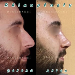 جراحی بینی مردانه در کرج