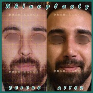 جراح بینی مردانه