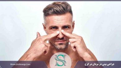عمل بینی مردان در کرج