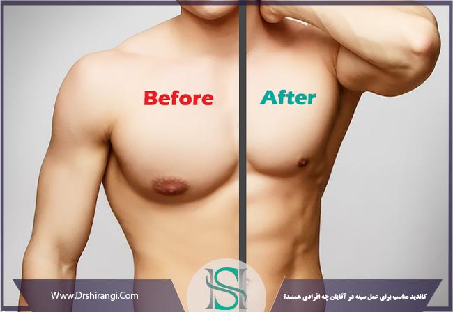 افراد مناسب برای عمل جراحی سینه مردان
