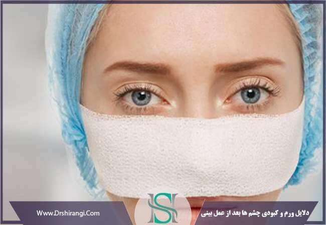 بررسی دلایل ورم چشم بعد از عمل بینی