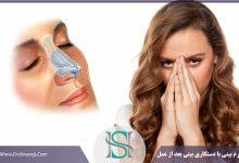 دستکاری بینی بعد از جراحی بینی