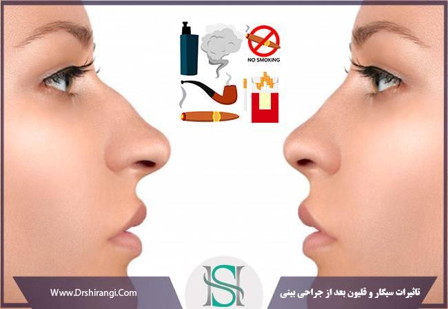 تاثیرات سیگار و قلیون بعد از جراحی زیبایی بینی