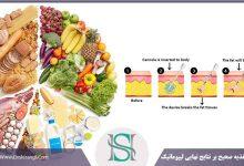 تاثیر تغذیه بر نتایج لیپوماتیک