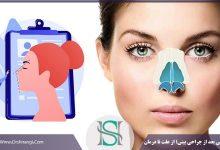 تنفس و مشکلات مربوط به آن بعد از عمل بینی