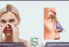 تورم چشم بعد از رینوپلاستی
