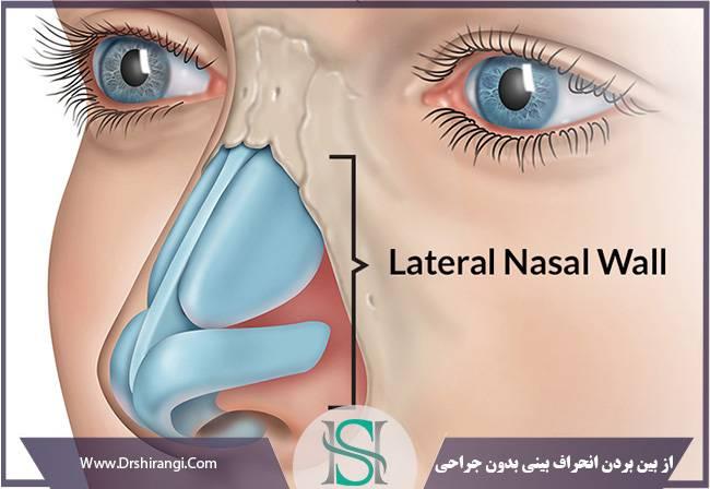 نتیجه درمان انحراف بینی بدون جراحی