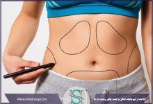 بازگشت چاقی بعد از لیپوماتیک