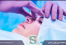 درمان انحراف بینی بدون عمل