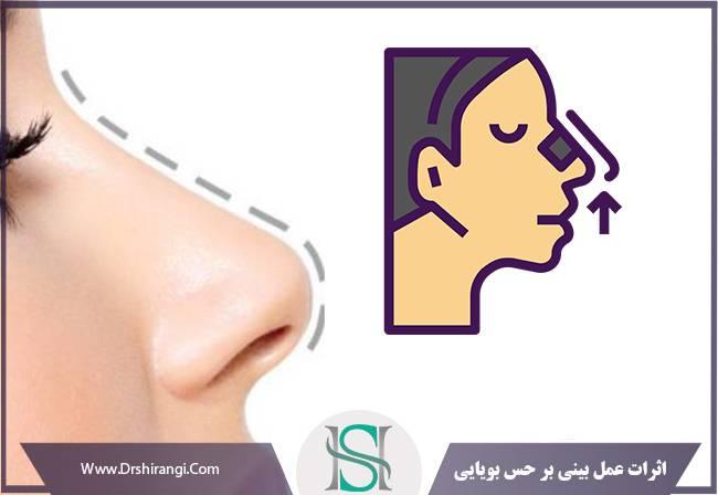 کاهش بویایی بعد از رینوپلاستی