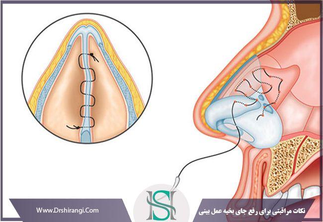 توصیه های مراقبتی جای زخم بعد از عمل بینی