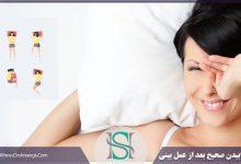 مدل صحیح خوابیدن بعد از رینوپلاستی