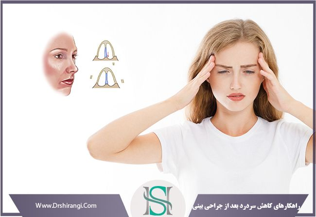 سردرد و سرگیجه بعد از عمل بینی