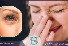 علت قرمزی چشم بعد رینوپلاستی