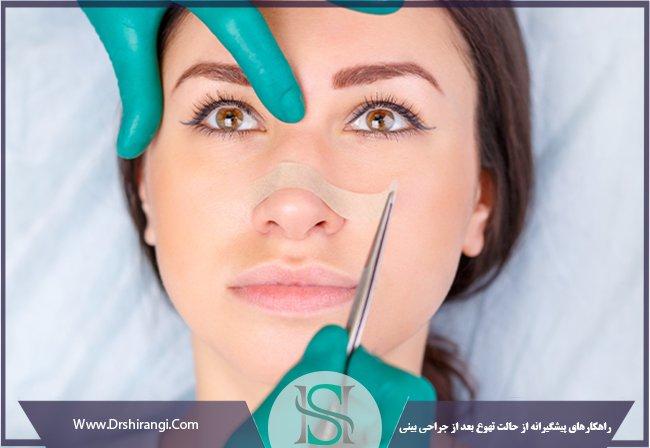 پیشگیری از استفراغ بعد عمل بینی